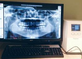 歯科用デジタルレントゲン