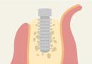 インプラント治療の手順2