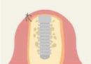 インプラント治療の手順3