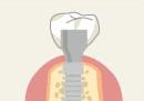 インプラント治療の手順6