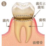 歯周病進行イメージ1