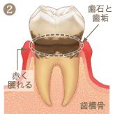 歯周病進行イメージ2