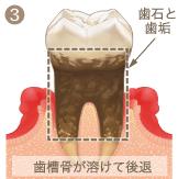 歯周病進行イメージ3