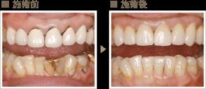 審美歯科症例1