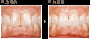 審美歯科症例2