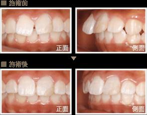 審美歯科症例3